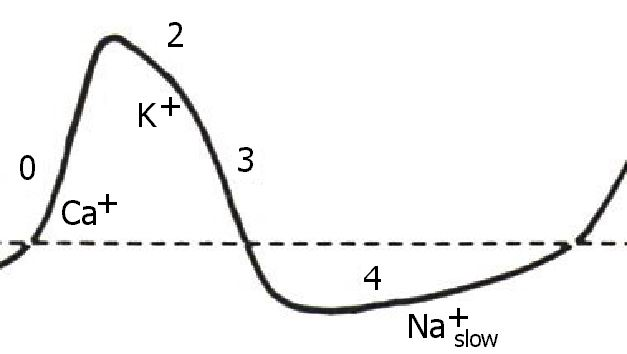 the action potential of the sinus node looks like this