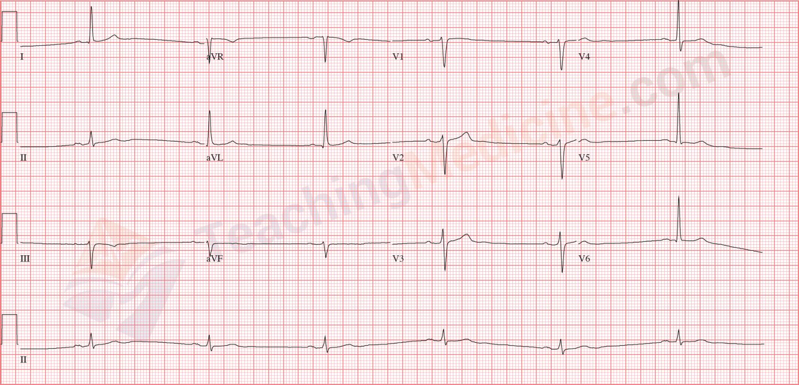 What is a bradycardia