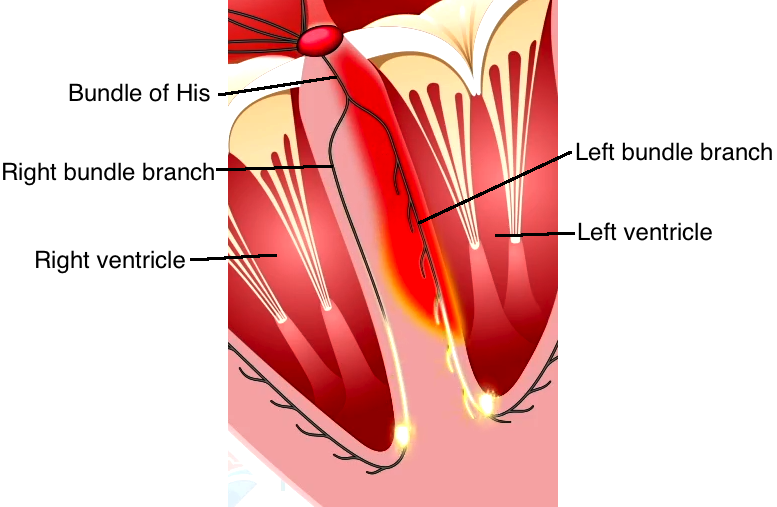Bundle branchesg the purkinje fibers are located close to the endocardium as a result depolarization in the ventricles begins near the endocardium and travels toward the ccuart Choice Image