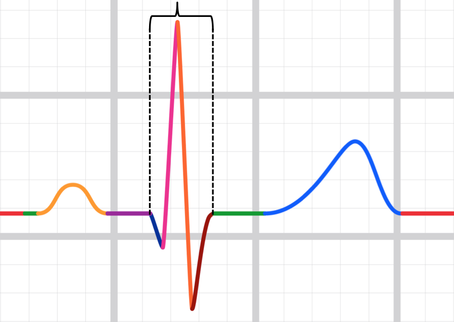 sometimes there is only 1 waveform in the qrs complex (and this is ok) and  sometimes 2, and sometimes 3 and sometimes > 3  in all instances, we still  call