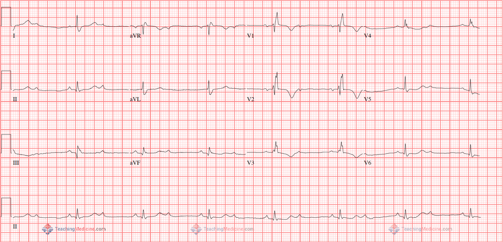 lead hb c png therefore it is impossible to determine if the pr interval is increasing or not and therefore impossible to say for sure if it is a type 1 or type 2 block