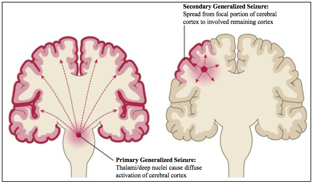 Seizures, Epilepsy, and Status Epilepticus